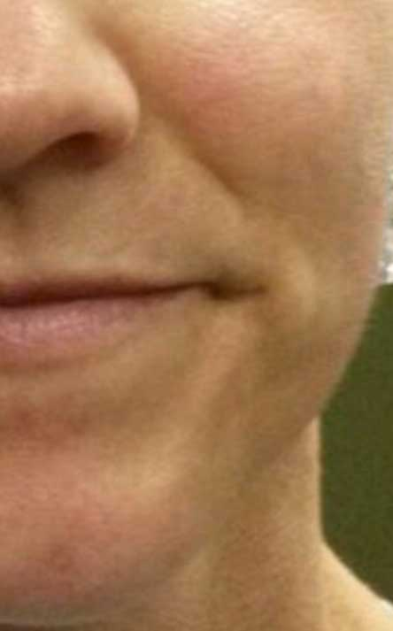 mouth-before