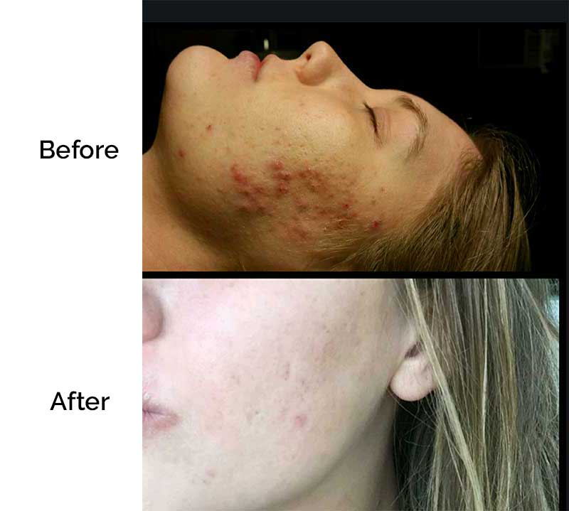 before-after-acne-2