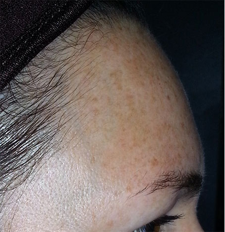 Forehead After