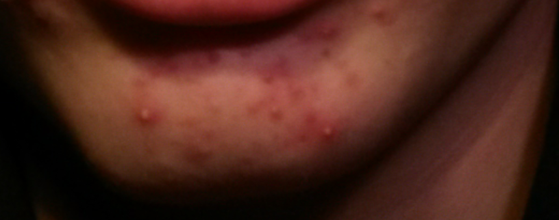 Acne Scars Before