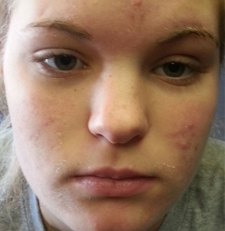 acne-before