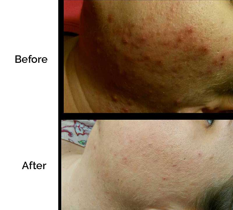 before-after-acne-1